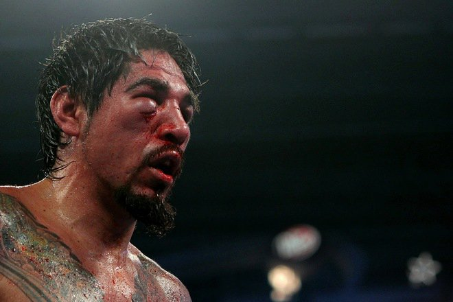 Manny Pacquiao breaks orbit of A. Margarito